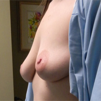 25-34 year old woman treated with Breast Lift with Implants before 2800172