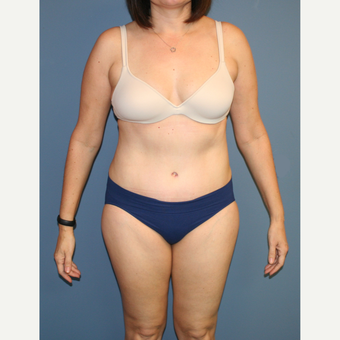 25-34 year old woman treated with Tummy Tuck after 3564265