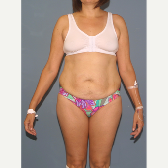 25-34 year old woman treated with Tummy Tuck before 3564265