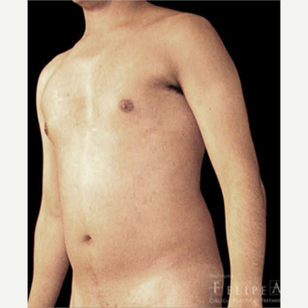 25-34 year old man treated with Abdominal Etching before 3413155