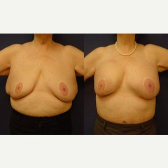 55-64 year old woman treated with Breast Reduction