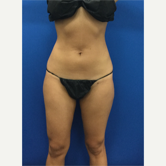 25-34 year old woman treated with Liposuction after 3142391
