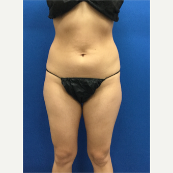 25-34 year old woman treated with Liposuction before 3142391