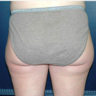 33 year old woman treated with Liposuction before 3721078
