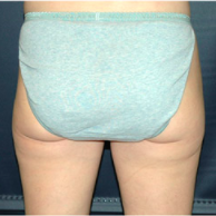 33 year old woman treated with Liposuction after 3721078