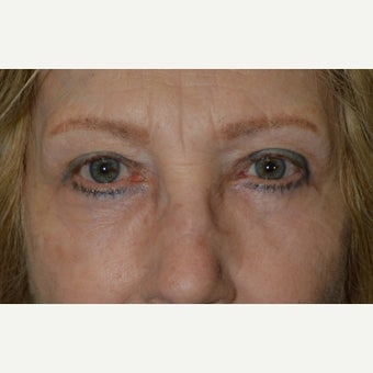 60+ year old female, who underwent quad-blepharoplasty (upper and lowers) and lateral brow lift. after 2060368