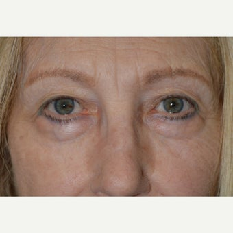 60+ year old female, who underwent quad-blepharoplasty (upper and lowers) and lateral brow lift. before 2060368