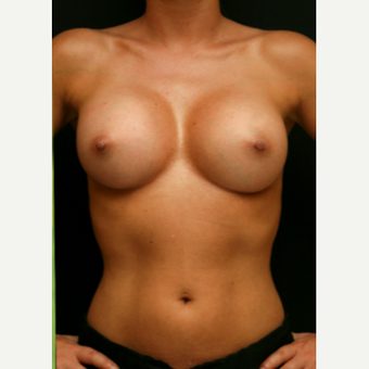 371cc MP Gel Breast Augmentation after 3294021