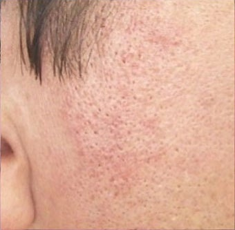 35-44 year old woman treated with Rosacea Treatment after 2119801