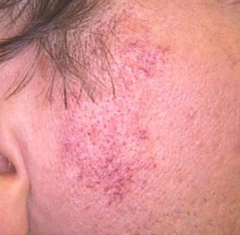 35-44 year old woman treated with Rosacea Treatment before 2119801