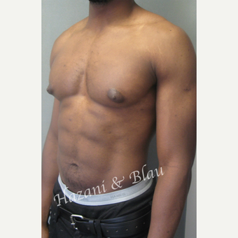 35-44 year old man treated with Male Breast Reduction before 3332987