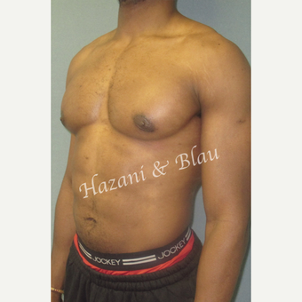35-44 year old man treated with Male Breast Reduction after 3332987