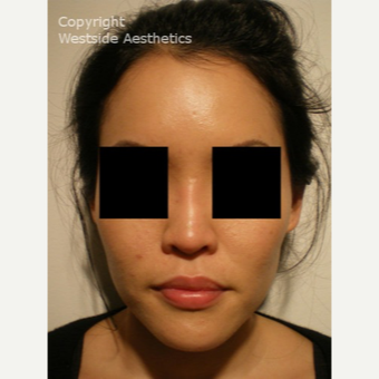 Non Surgical Nose Job on Asian Woman after 2975825