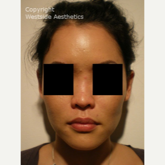 Non Surgical Nose Job on Asian Woman before 2975825