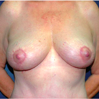 61 year old woman treated with Breast Lift after 3665879