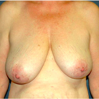 61 year old woman treated with Breast Lift before 3665879