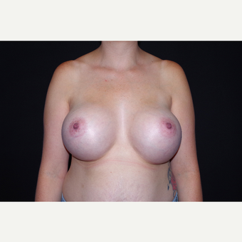 25-34 year old woman treated with Breast Augmentation after 3741718