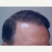 Hair Transplant after 3241363