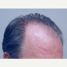 Hair Transplant before 3241363
