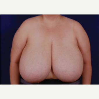 35-44 year old woman treated with Breast Reduction before 3439234
