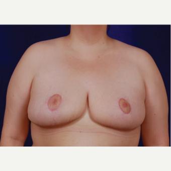 35-44 year old woman treated with Breast Reduction after 3439234