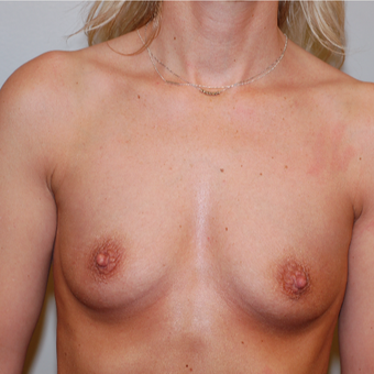 35-44 year old woman treated with Breast Augmentation before 3129357