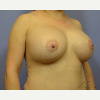 35-44 year old woman treated with Breast Augmentation after 3386387