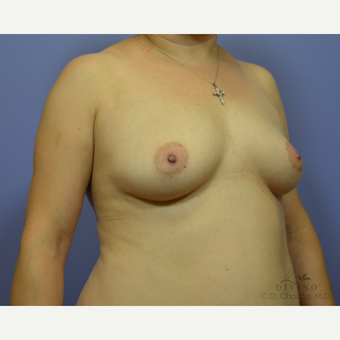 35-44 year old woman treated with Breast Augmentation before 3386387