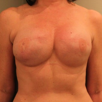 Breast Reconstruction Second Surgery