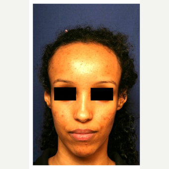 25-34 year old woman treated with Forehead Reduction before 2861848