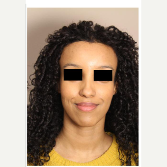 25-34 year old woman treated with Forehead Reduction after 2861848