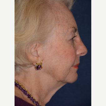 75 and up year old woman treated with Facelift before 3466697