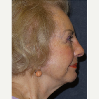 75 and up year old woman treated with Facelift after 3466697