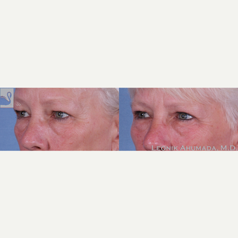 55-64 year old woman treated with Upper Eyelid Surgery after 3093456