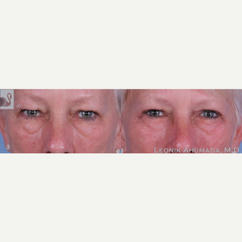 55-64 year old woman treated with Upper Eyelid Surgery before 3093456