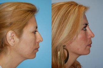 Rhinoplasty before 178008