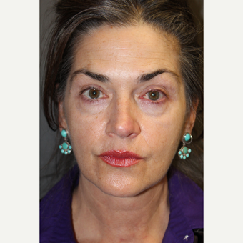 55-64 year old woman treated with Juvederm before 2685040