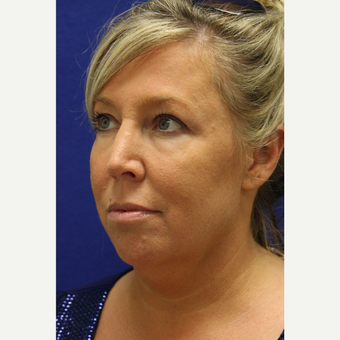 45-54 year old woman treated with Chin Liposuction before 3407074