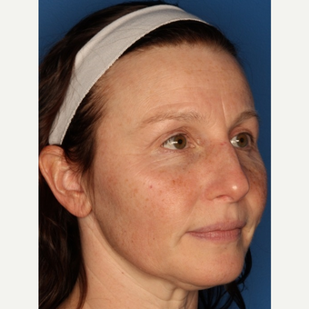 Before and After: Woman treated with IPL before 3711532