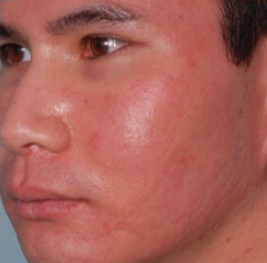 25-34 year old man treated with Acne Scars Treatment after 2465698