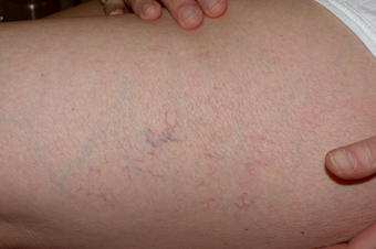 Sclerotherapy for spider veins on thigh before 1307682