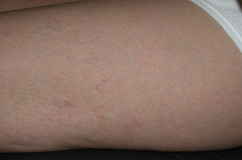 Sclerotherapy for spider veins on thigh after 1307682