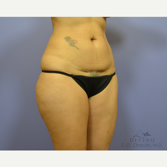 35-44 year old woman treated with Tummy Tuck before 3415715