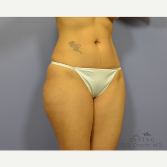 35-44 year old woman treated with Tummy Tuck after 3415715