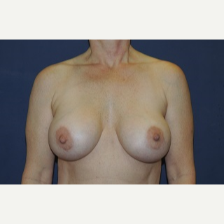 35-44 year old woman treated with Breast Implant Revision before 3344219