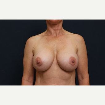 35-44 year old woman treated with Breast Implant Revision after 3344219
