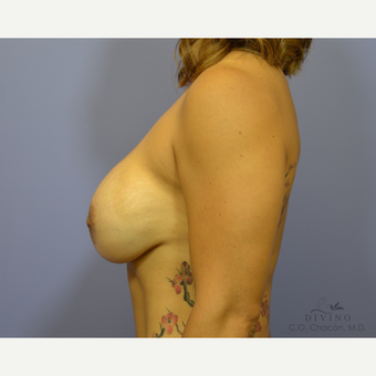 45-54 year old woman treated with Breast Implant Revision after 3421717