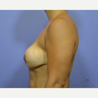 45-54 year old woman treated with Breast Implant Revision before 3421717