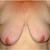 59 year old woman treated with Breast Lift before 3666096