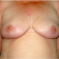 59 year old woman treated with Breast Lift after 3666096